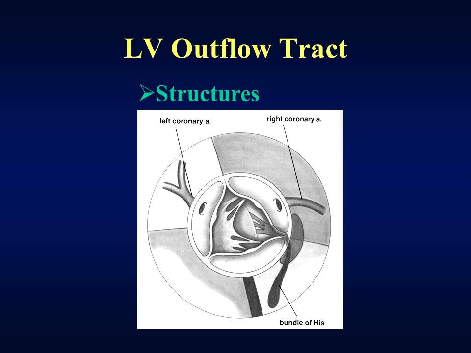 Congenital LVOT Obstruction - ppt video online download