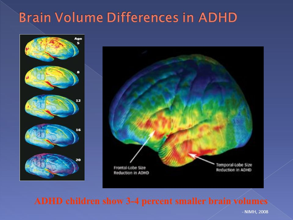 Brain Differences In Adhd >> Neuroscience Update Executive Functions Dyslexia Dti Ppt Download