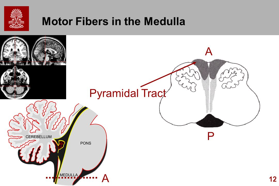 Motor Fibers in the Medulla