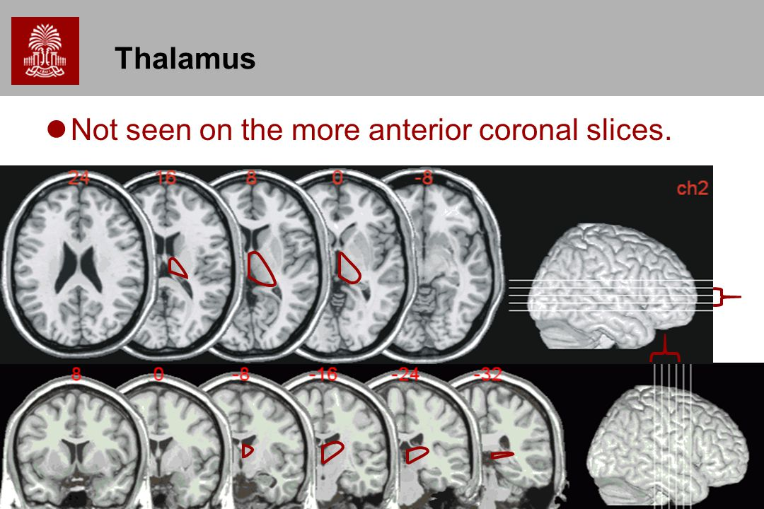 Thalamus Not seen on the more anterior coronal slices.