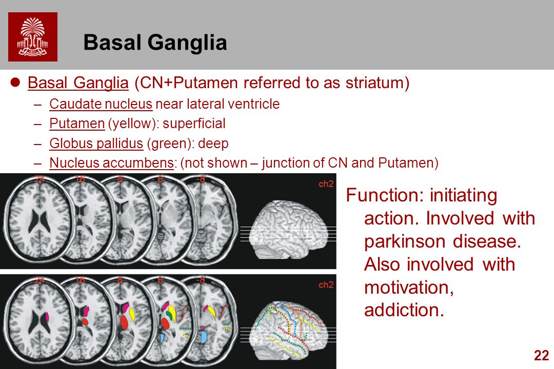 Basal Ganglia Basal Ganglia (CN+Putamen referred to as striatum) Caudate nucleus near lateral ventricle.