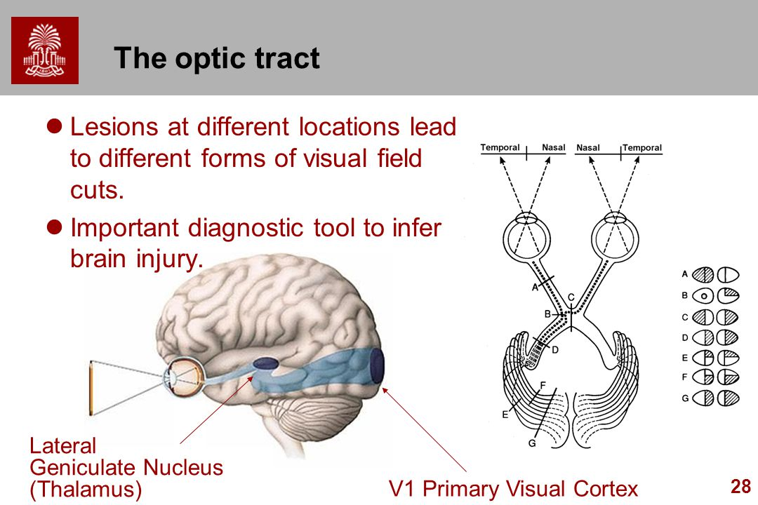 The optic tract Lesions at different locations lead to different forms of visual field cuts. Important diagnostic tool to infer brain injury.