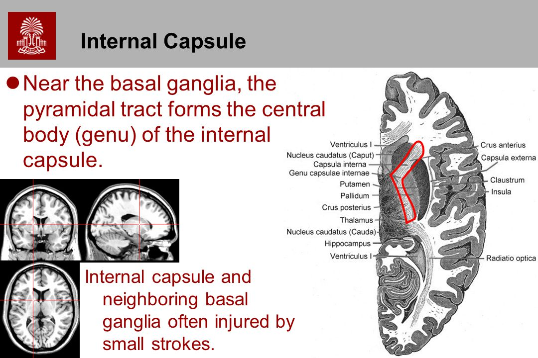 Internal Capsule Near the basal ganglia, the pyramidal tract forms the central body (genu) of the internal capsule.