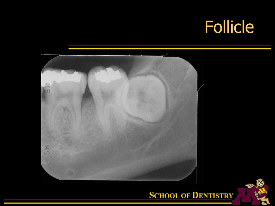 Intraoral Radiographic Anatomy Ppt Download