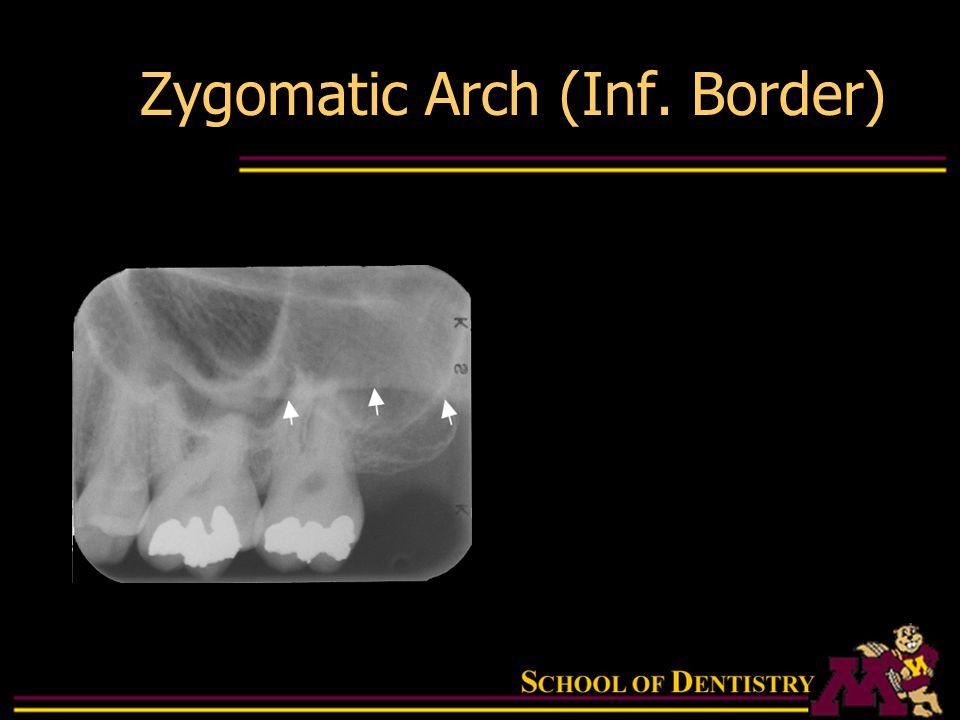 Intraoral Radiographic Anatomy - ppt download