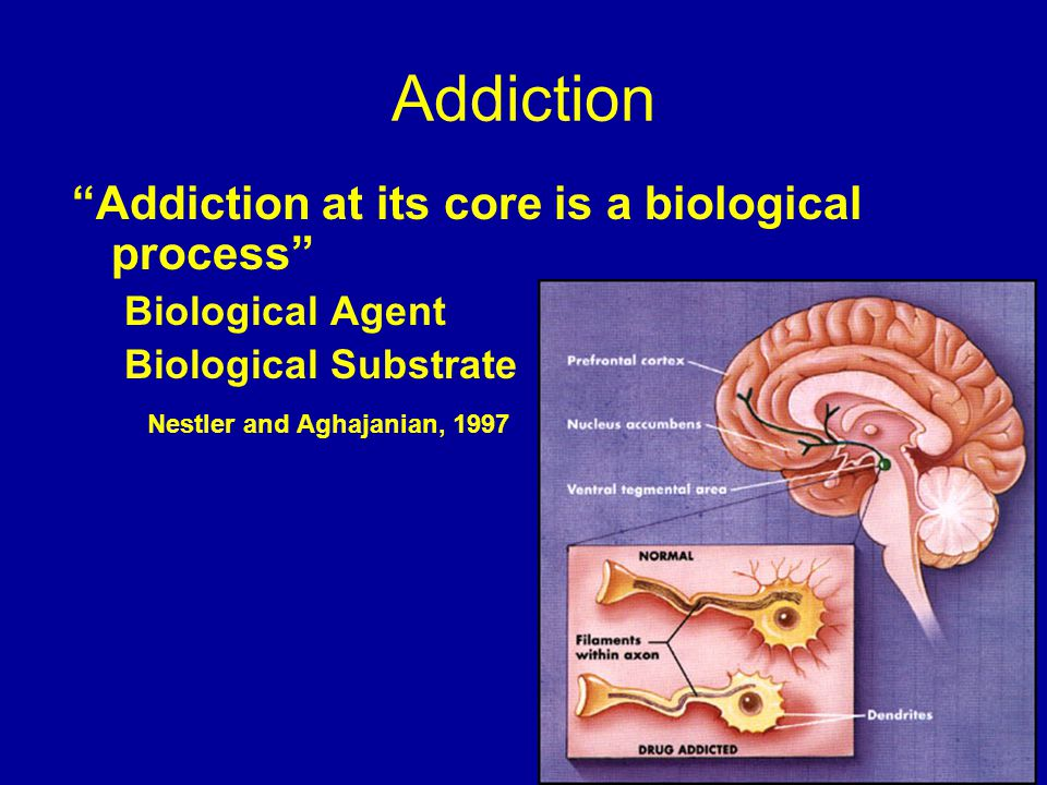 biological model of addiction essay Should be placed on integrating the personal model of addiction into a personal model of recovery that can further serve as the basis and underlying assumptions guiding your work in addiction counseling.