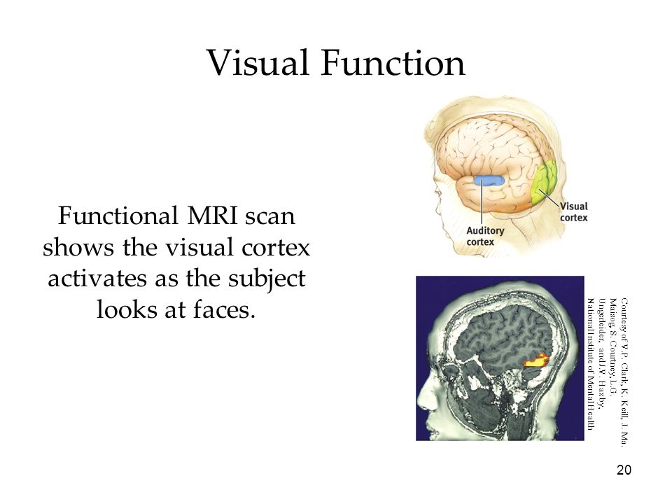 Visual Function Functional MRI scan shows the visual cortex activates as the subject looks at faces.
