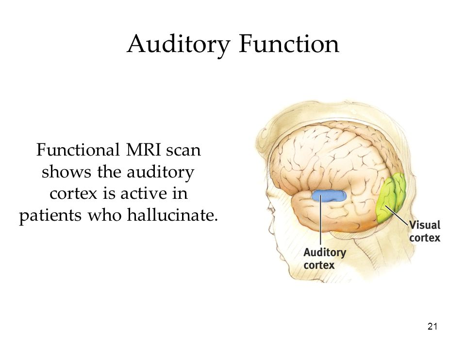 Auditory Function Functional MRI scan shows the auditory cortex is active in patients who hallucinate.