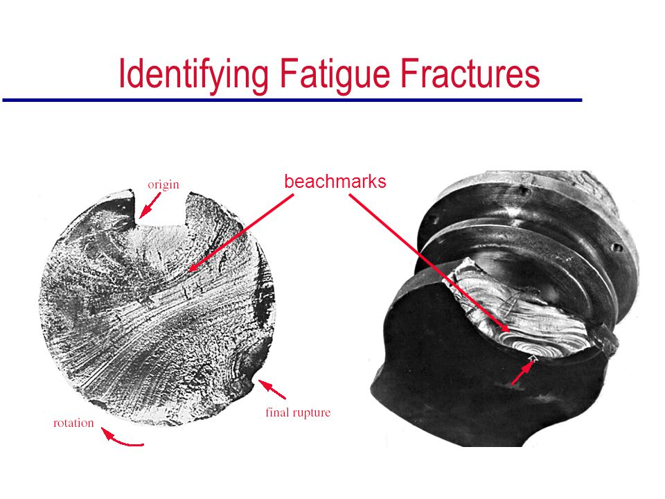 Identifying Fatigue Fractures