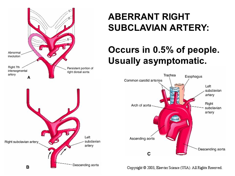 Vascular Ring Aberrant Subclavian Right Arch
