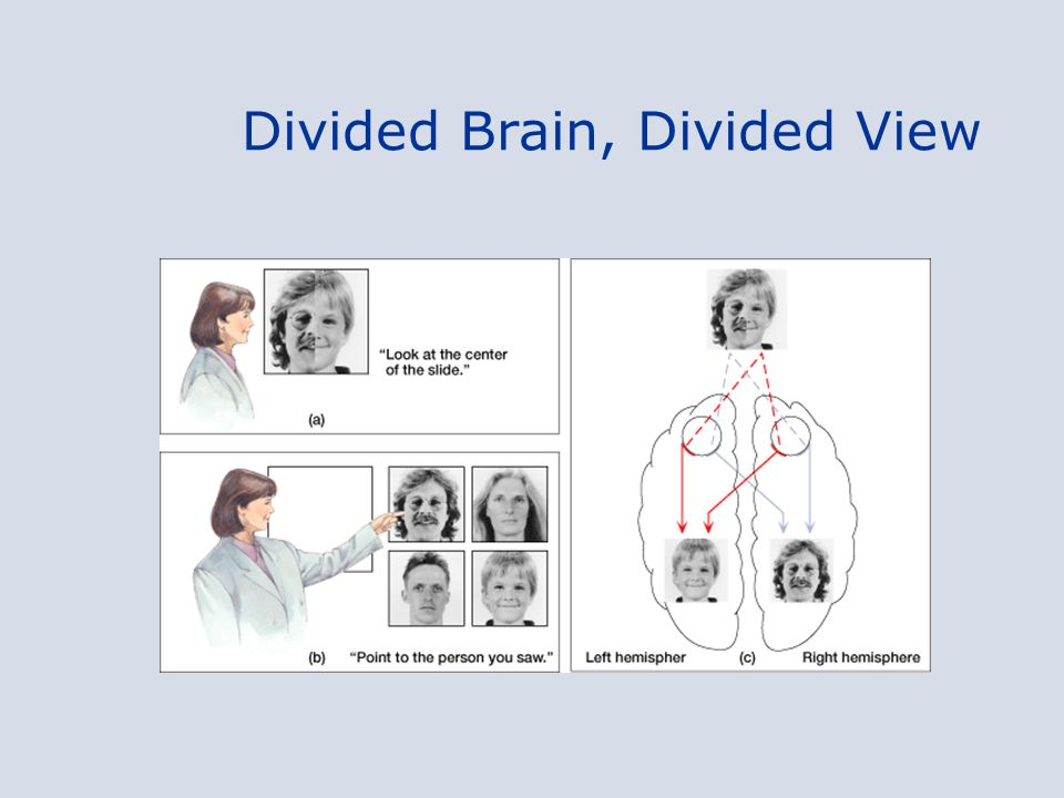 Divided Brain, Divided View