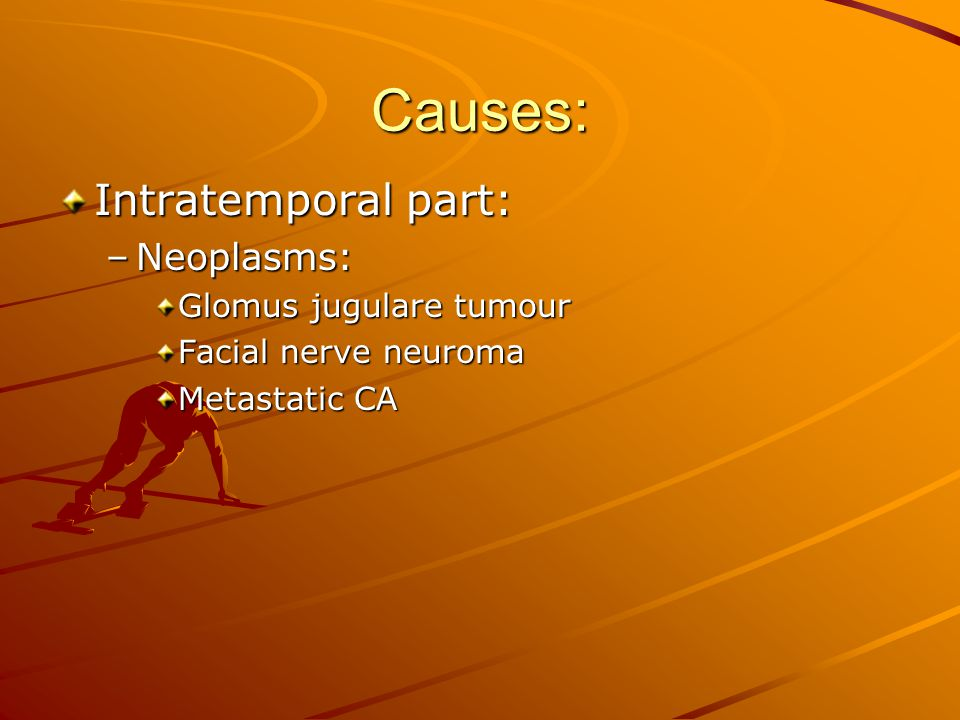 Have Symptoms of facial nerve neuroma apologise