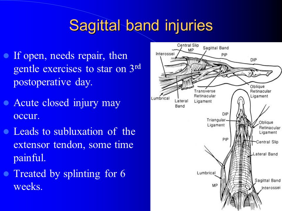 Extensor Tendon Injuries In The Hand And Wrist Ppt Video Online