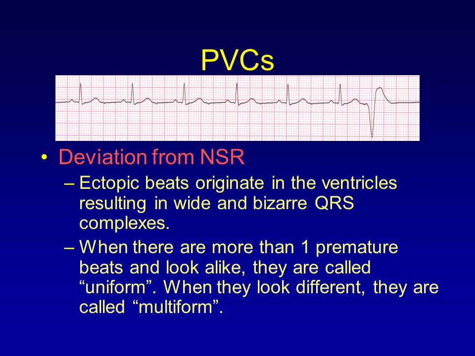 PVCs Deviation from NSR