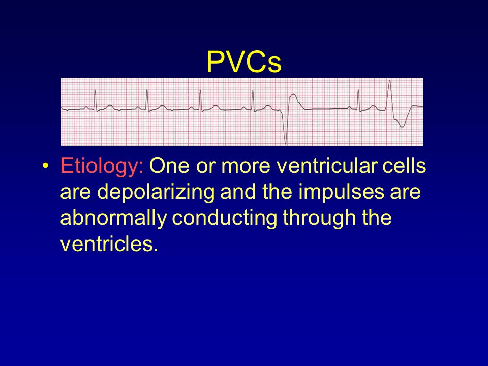 PVCs Etiology: One or more ventricular cells are depolarizing and the impulses are abnormally conducting through the ventricles.