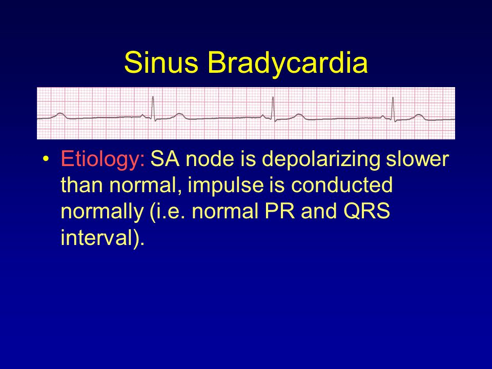 Sinus Bradycardia Etiology: SA node is depolarizing slower than normal, impulse is conducted normally (i.e.