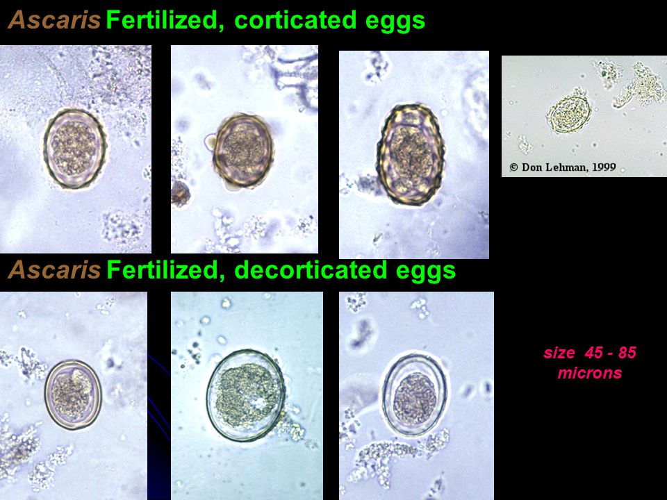 The Life Cycle of Giardia Lamblia - ppt video online download