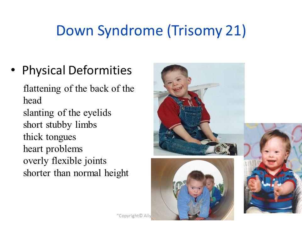 Fetal Alcohol Syndrome Ppt Video Online Download
