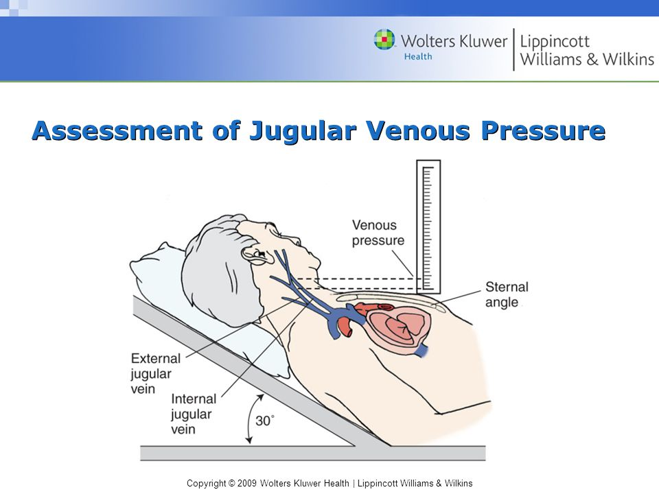 jugular vein pressure - 960×720
