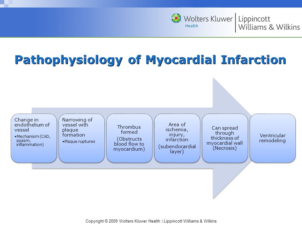Chapter 21 Acute Myocardial Infarction Ppt Video Online