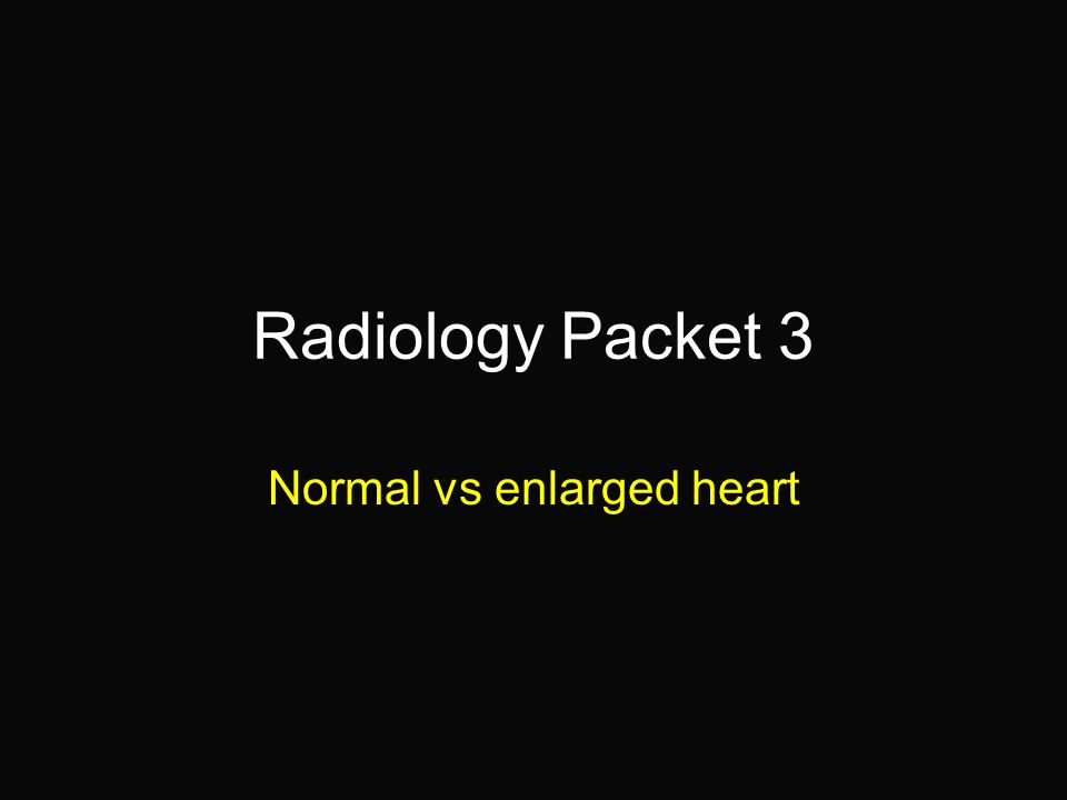 Normal vs enlarged heart