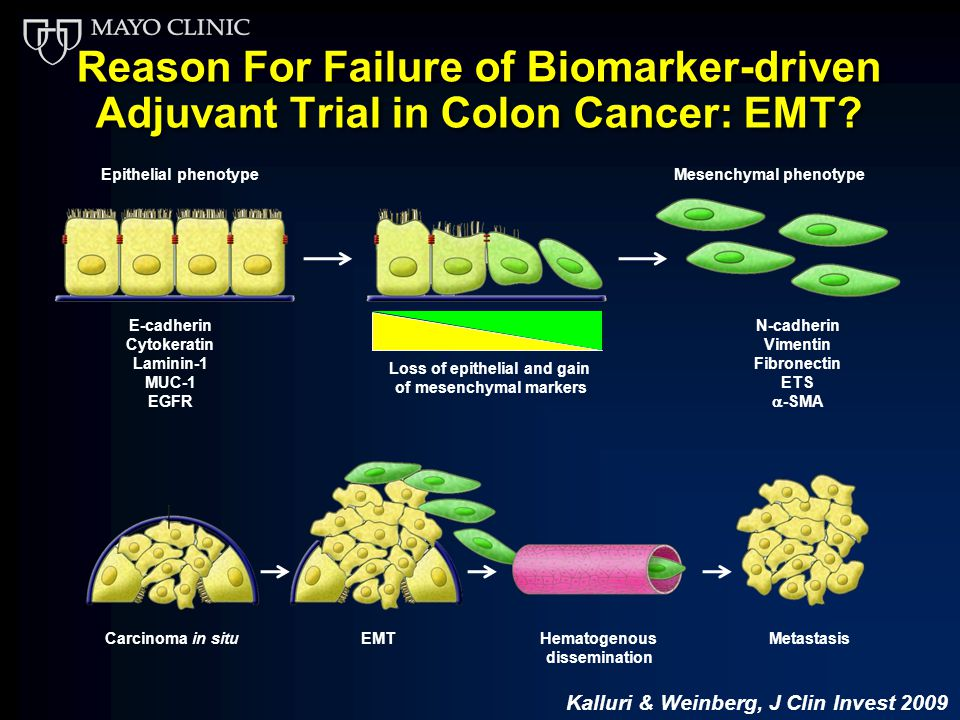 Molecular Predictors In Clinical Decision Making For Colon Cancer Ppt Download