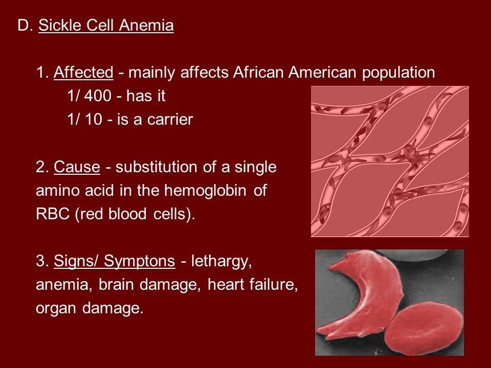 D. Sickle Cell Anemia 1. Affected - mainly affects African American population. 1/ has it. 1/ 10 - is a carrier.