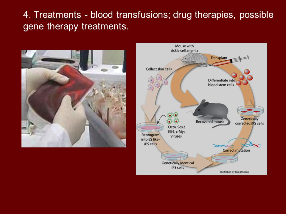 4. Treatments - blood transfusions; drug therapies, possible gene therapy treatments.