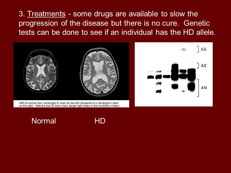 3. Treatments - some drugs are available to slow the progression of the disease but there is no cure. Genetic tests can be done to see if an individual has the HD allele.