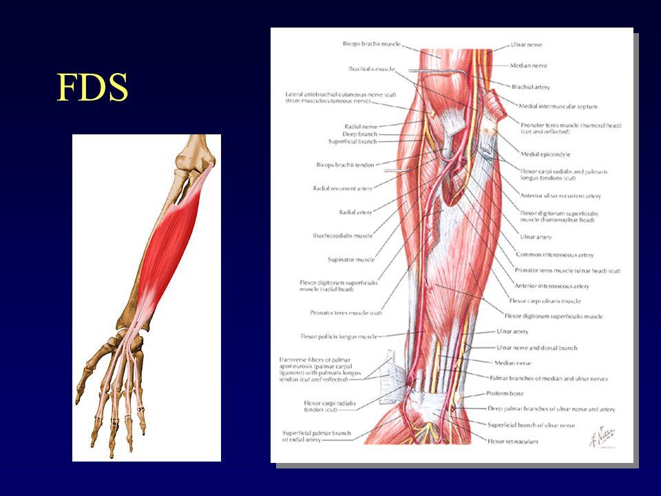Flexor Tendon Injuries - ppt video online download