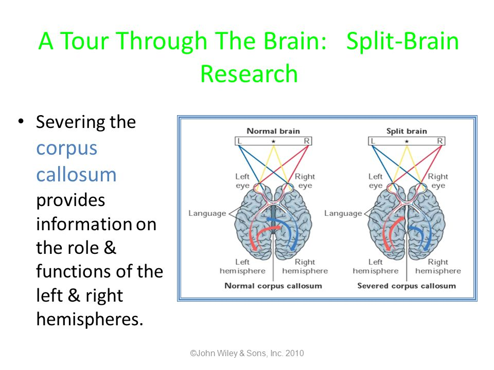 A Tour Through The Brain: Split-Brain Research