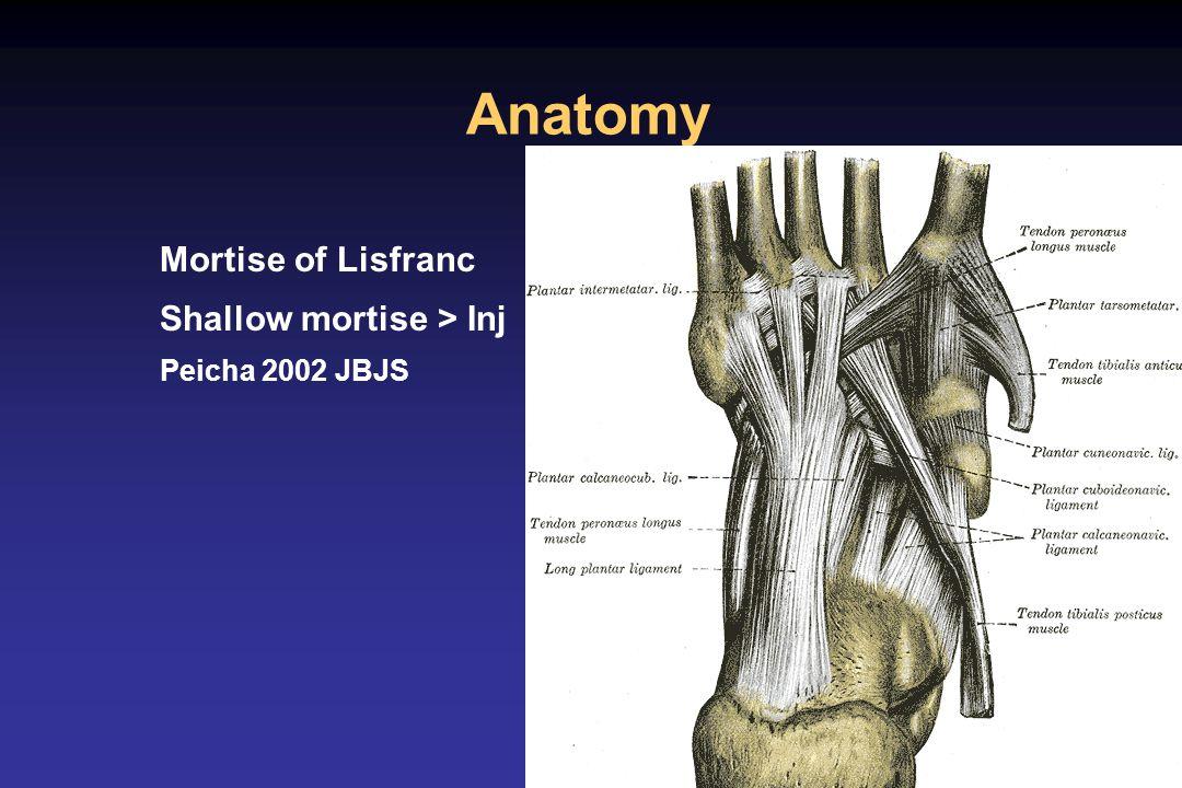 Lisfranc fracture dislocation - ppt video online download