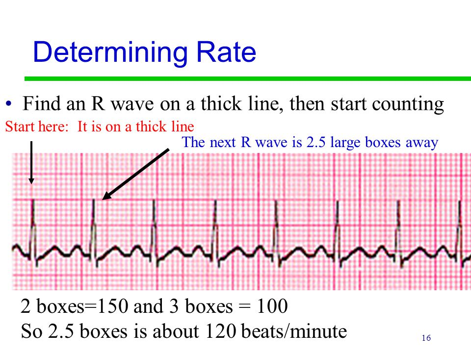 Determining Rate Find an R wave on a thick line, then start counting