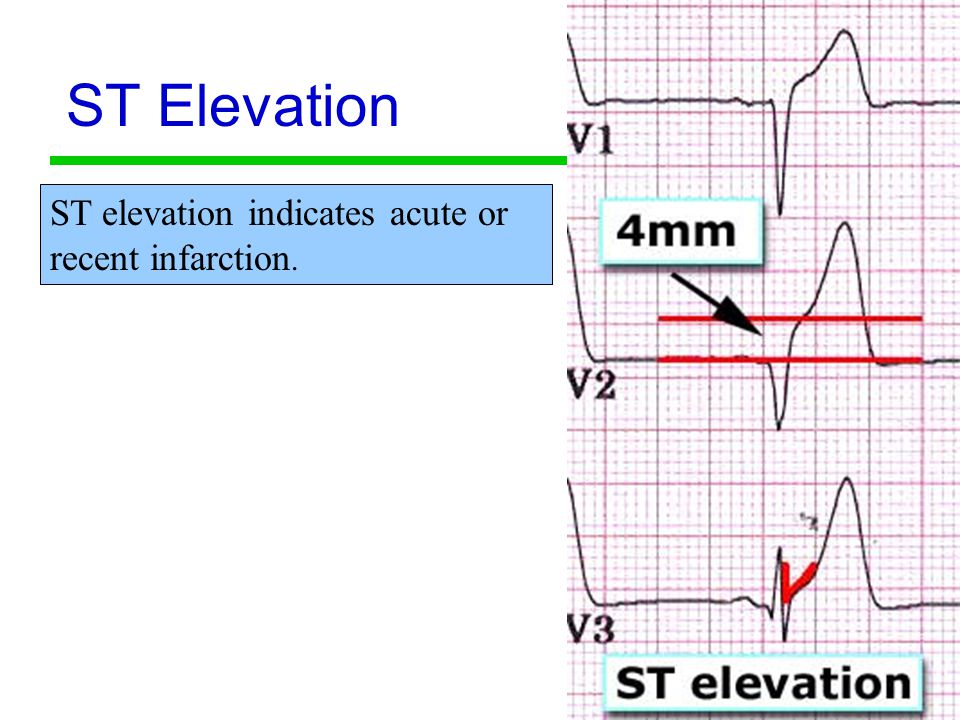 ST Elevation ST elevation indicates acute or recent infarction.