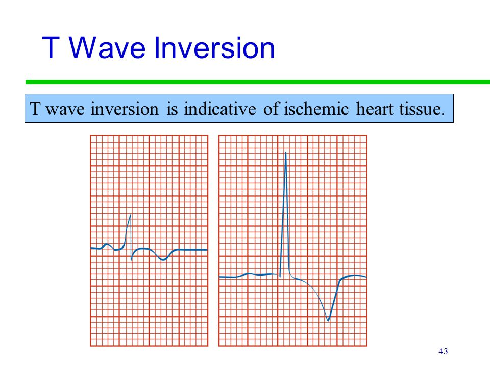 T Wave Inversion T wave inversion is indicative of ischemic heart tissue.