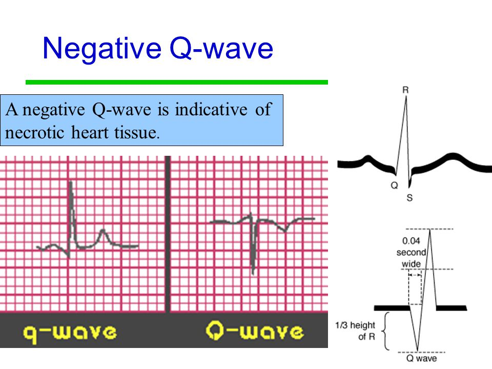 Negative Q-wave A negative Q-wave is indicative of necrotic heart tissue.