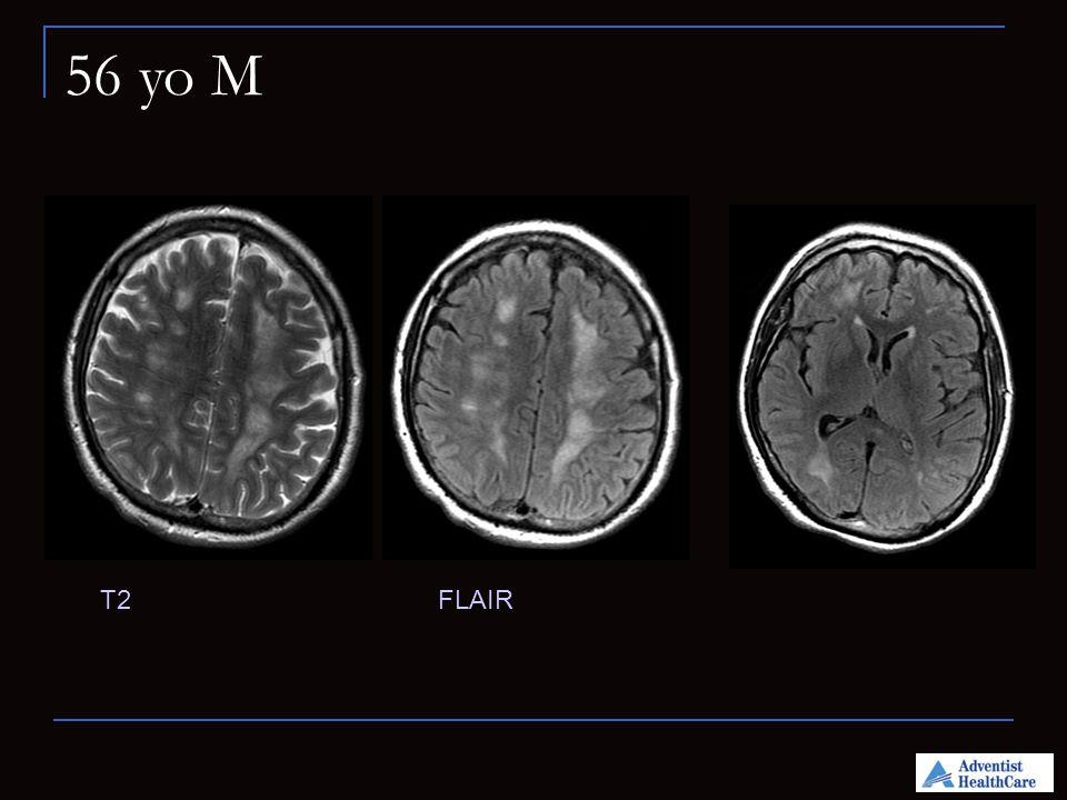 Brain Tumor Imaging Caribbean Medical Providers Practicing ...