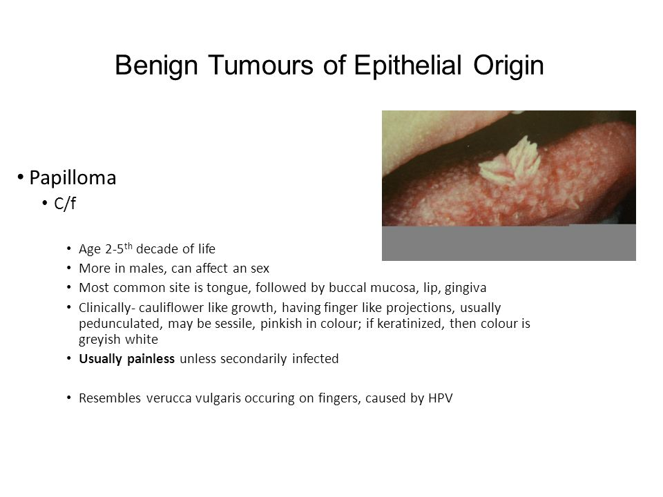 Benign Tumours of Epithelial Origin