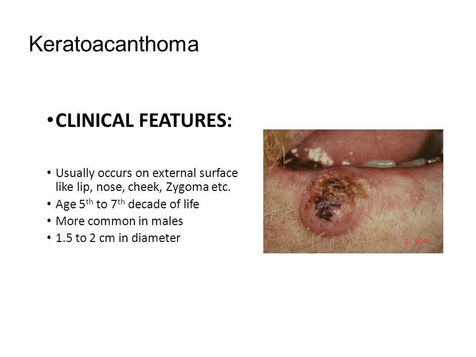Keratoacanthoma CLINICAL FEATURES: