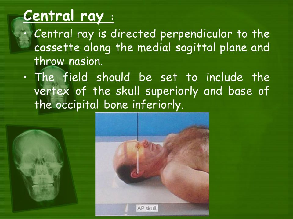 Positioning and Radiographic Anatomy of the Skull - ppt video online ...