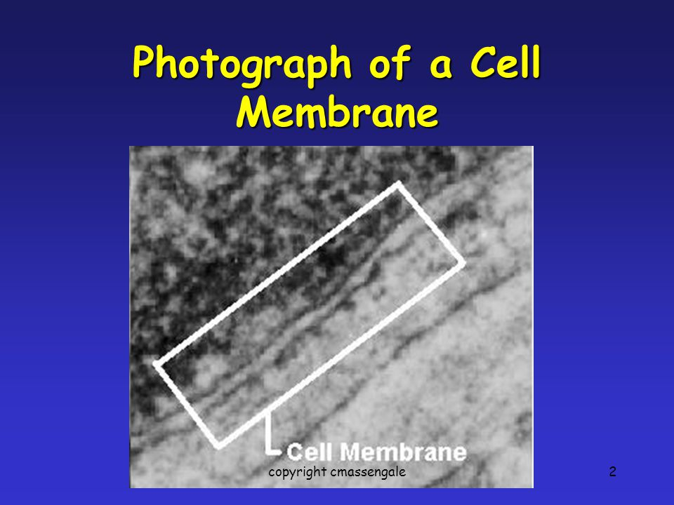 Photograph of a Cell Membrane
