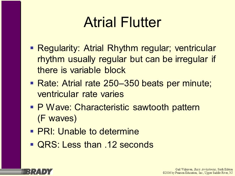 Atrial Flutter Regularity: Atrial Rhythm regular; ventricular rhythm usually regular but can be irregular if there is variable block.
