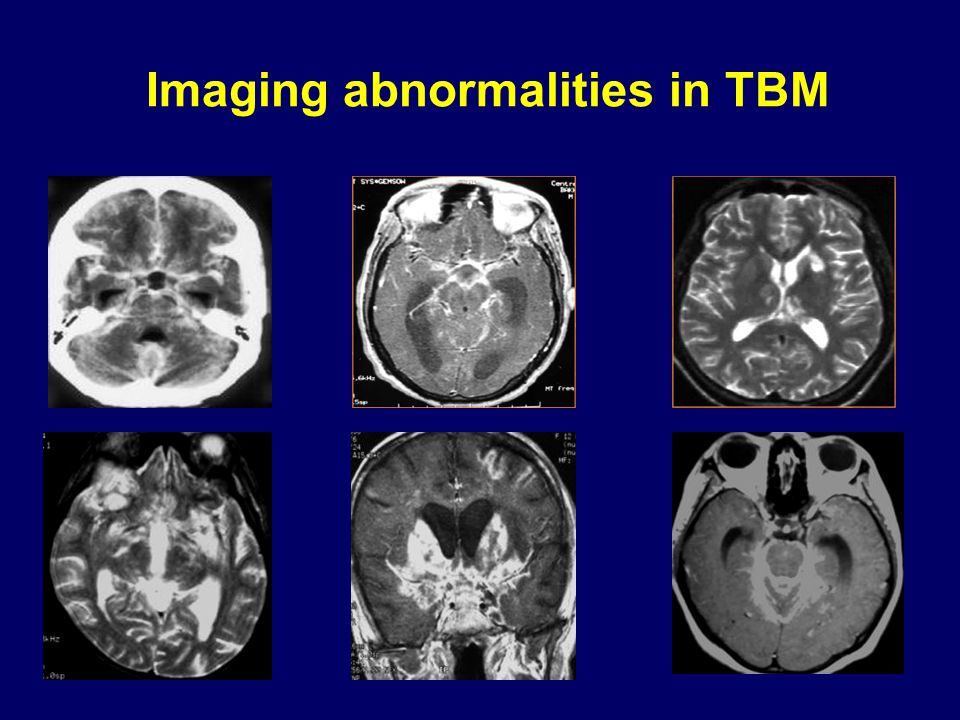 Imaging abnormalities in TBM