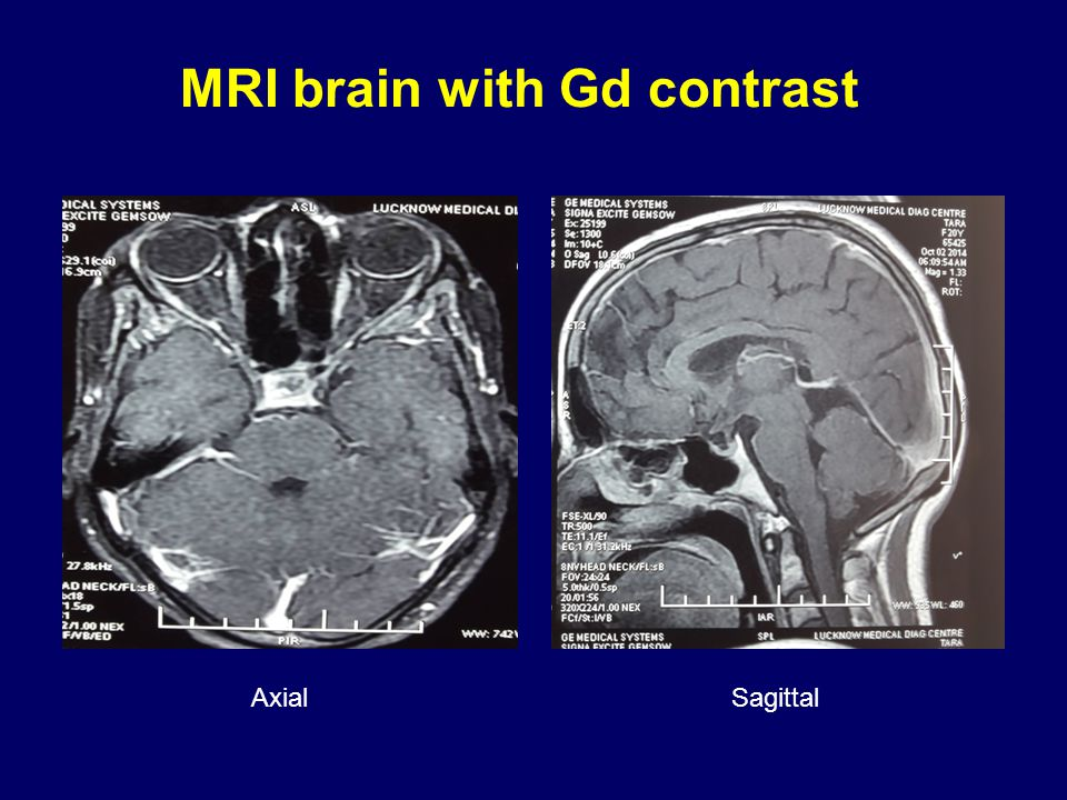 MRI brain with Gd contrast