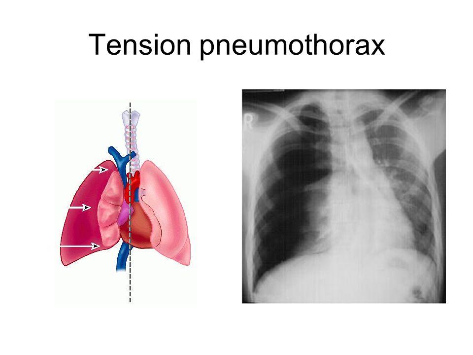 tension pneumothorax nursing - 960×720