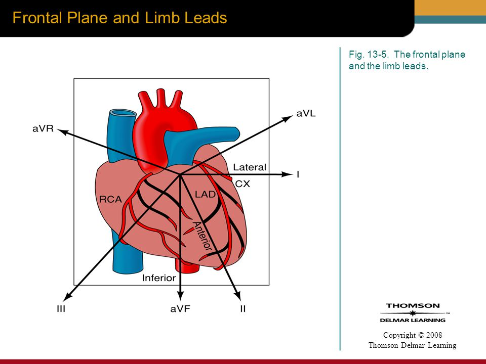 Frontal Plane and Limb Leads