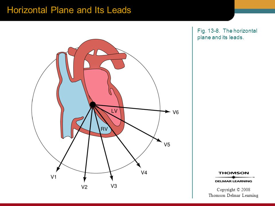 Horizontal Plane and Its Leads