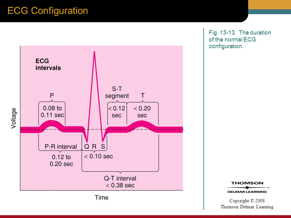 ECG Configuration Fig The duration of the normal ECG configuration.