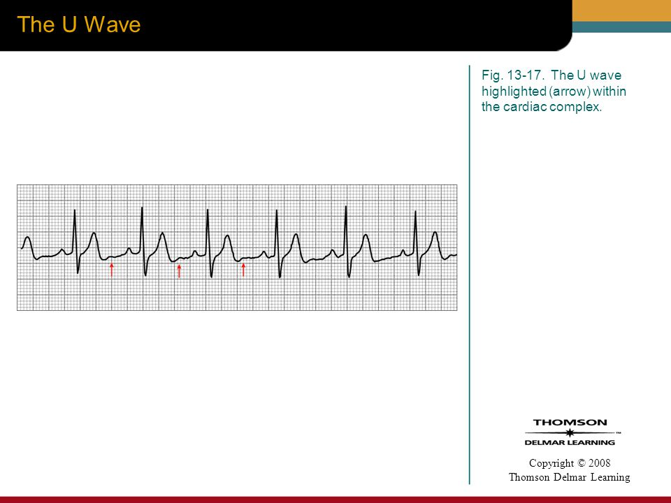 The U Wave Fig The U wave highlighted (arrow) within the cardiac complex.