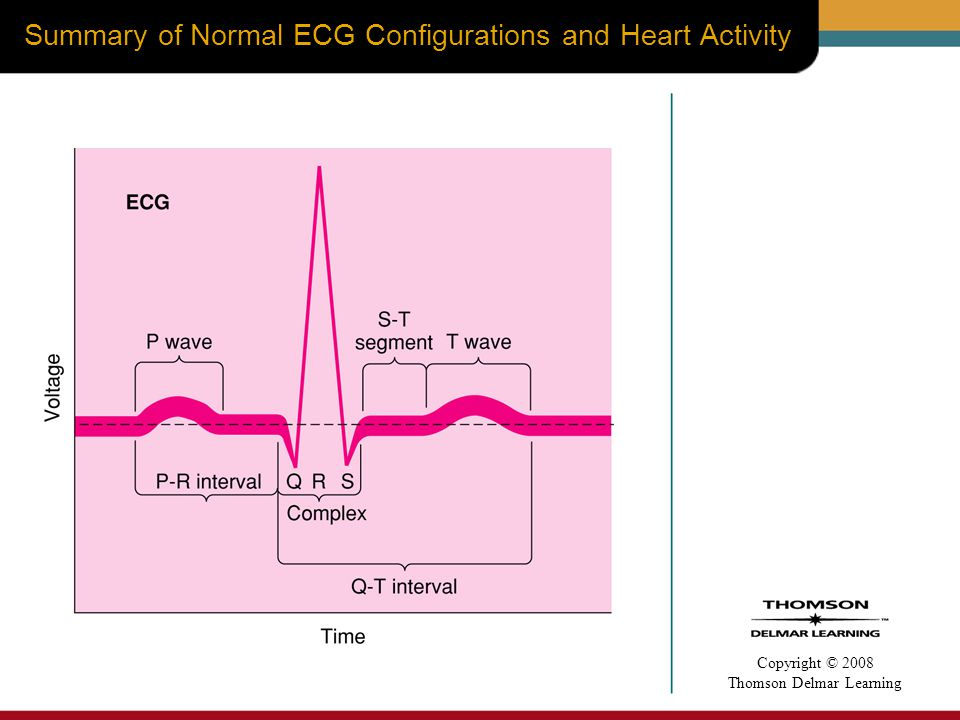 Summary of Normal ECG Configurations and Heart Activity